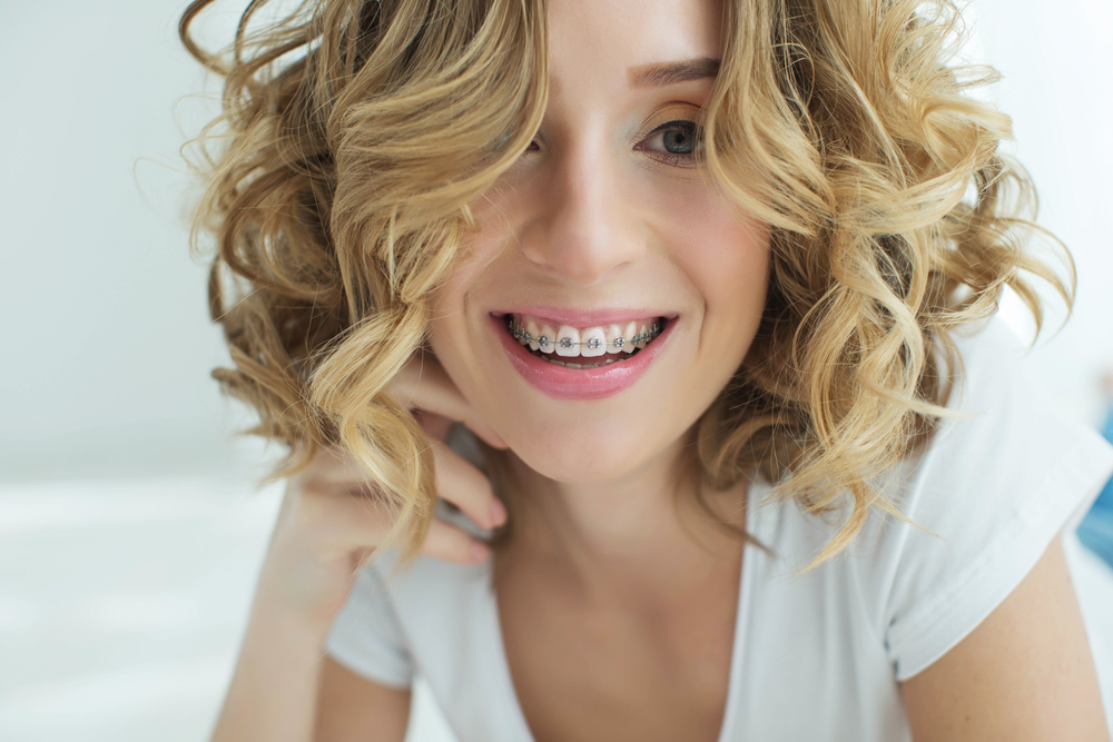 5 Simple Tips On Caring For Your Braces During Orthodontic Treatment