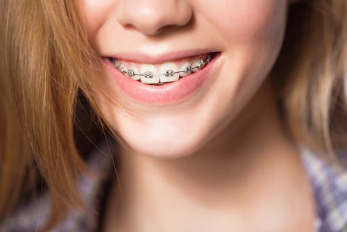 Adolescent Orthodontics Yardley