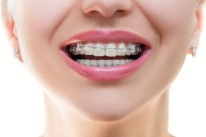 Adult Orthodontics Yardley