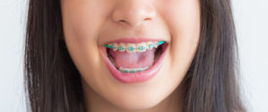 Blog_Kids-Braces