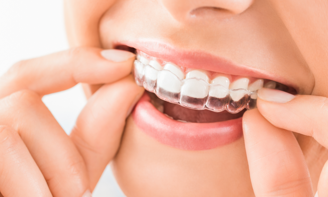 Words You'd Never Associate with Braces (And Why They Matter)
